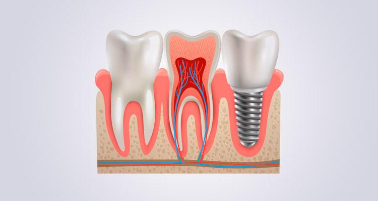 Colocación de implantes dentales paso a paso