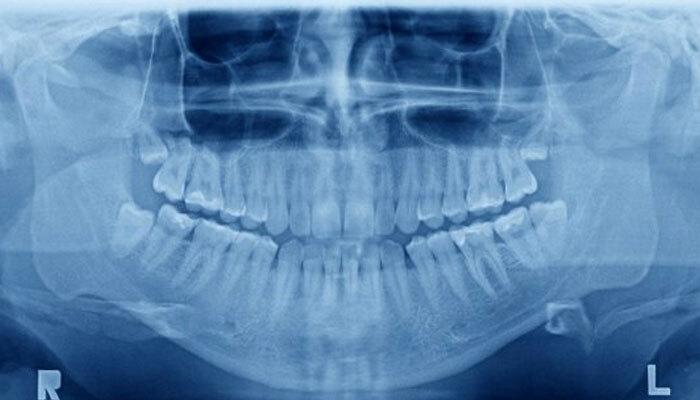 ¿Qué es la pantomografía dental?