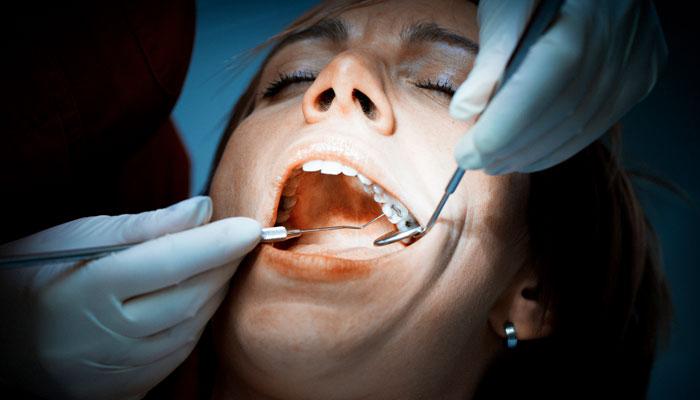 Obturación dental, todo lo que debes saber